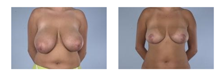 Breast Reduction - McGrath Knol