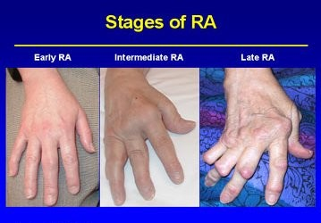 Plastic & Reconstructive Surgery - Hand Surgery for ...